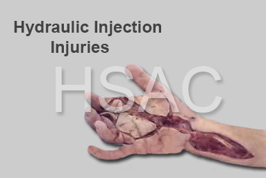 hydraulic injection injury